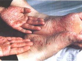 掌跖脓疱疮的症状是什么