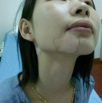 北京治白癜风好的医院?