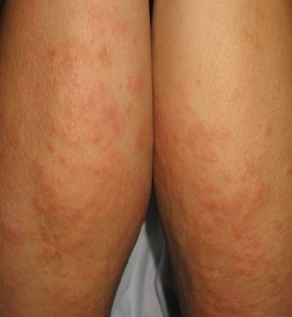 皮肤瘙痒可分为哪些类型