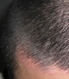 头部牛皮癣复发的原因是?