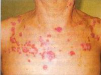 导致红斑狼疮发病的因素有哪些