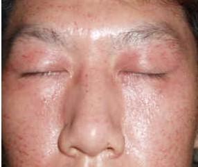 哪些疾病会引起皮肤瘙痒