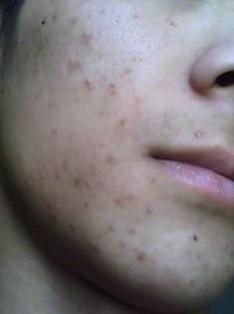 脸上的暗疮怎么去除_脸上长痤疮应该注意什么细节_中医皮肤网