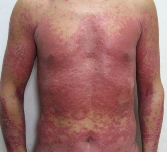 北京治疗荨麻疹好医院是那家呢?