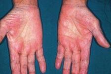 皮肤瘙痒有什么明显症状