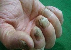 远侧端甲下型灰指甲的形成原因