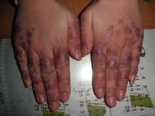 怎样治疗系统性红斑狼疮及护理