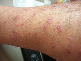 牛皮癣病情加重会有哪些症状表现