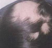 脱发的早期治疗是怎样进行的?