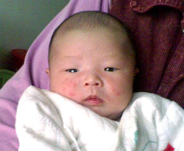 婴幼儿丘疹性痤疮的常见症状