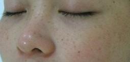 雀斑有何明显症状表现