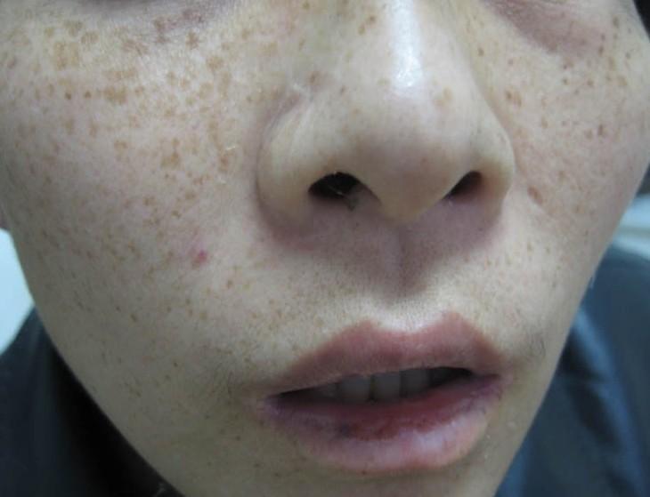 黄褐斑如何预防有效果呢?