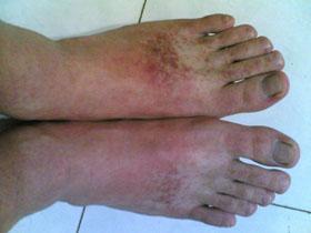 脚上长湿疹怎么治能治好
