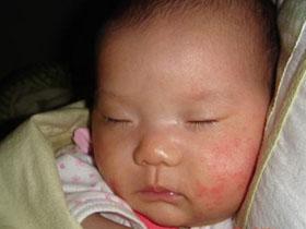 婴儿湿疹和饮食有关系吗