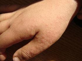 过敏性皮炎和湿疹怎样预防