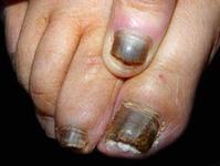 诱发灰指甲病因的四大因素