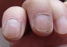 患上灰指甲以后如何治疗有效