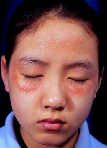 渗透性湿疹发病原因是什么呢?