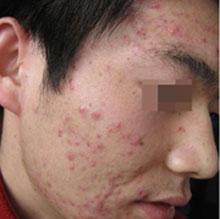 青春痘的治疗误区有哪些呢
