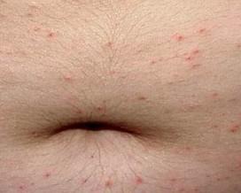皮肤瘙痒是怎么引起的呢?