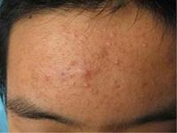青春痘粉刺患者应该采取哪些措施