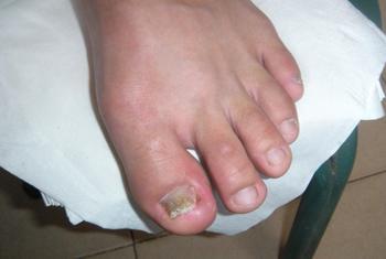 药物浸泡治疗灰指甲