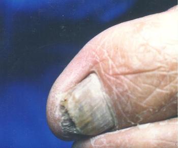 灰指甲有哪些辅助治疗的方法