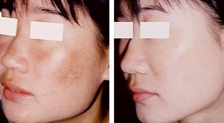 黄褐斑的早期主要症状是哪些?