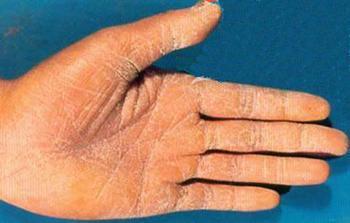 手足癣的保健预防方法