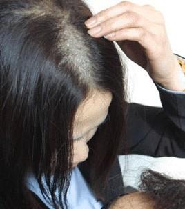 常见脱发有何症状