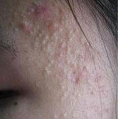 夏天如何防止青春痘伤害