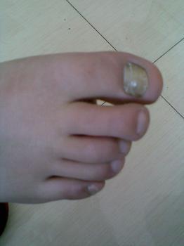 患上灰指甲会传染给别人吗