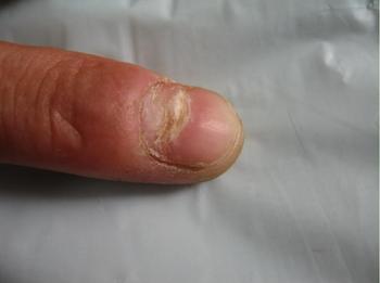手指的灰指甲是怎么形成的