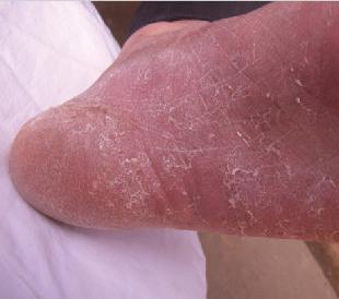 干性手足癣是什么病及预防