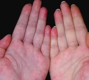 诱发红斑狼疮的常见因素有哪些?