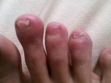 患有灰指甲要注意什么及怎么做