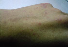 皮肤过敏了该怎么办