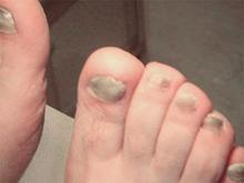 灰指甲和脚气有什么关联及怎么预防