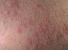 荨麻疹常见有什么症状表现