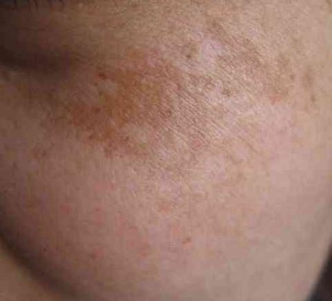 脸上为什么会长黄褐斑呢?