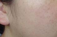 遗传性雀斑有何症状表现