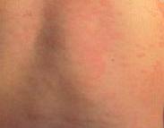 正确诊断荨麻疹的症状有何方法呢