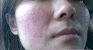 儿童皮肤过敏如何护理呢?