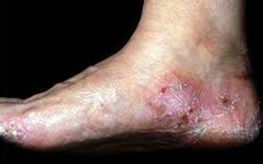 手足癣的巨大危害