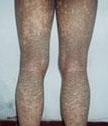 鱼鳞病主要有哪些症状类型呢