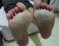 手足癣是什么样的?