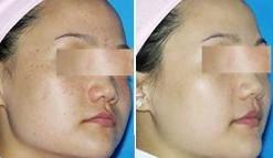 黄褐斑的皮肤要怎么养护呢?