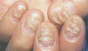 小孩患有灰指甲中西医如何治疗?