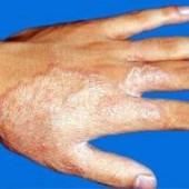高效治疗手足癣方法何在