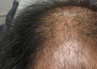 作息不规律会诱发脱发吗